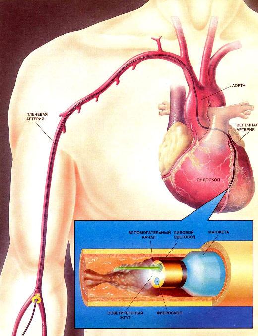 Волоконные световоды могут передавать лазерное излучение по венечным артериям для разрушения бляшек. Один из приборов, который может быть разработан уже в ближайшем будущем, включает в себя фиброскоп, надуваемую манжету и силовой световод. Его можно будет вводить через плечевую артерию в венечную артерию. Фиброскоп позволит медикам визуально обнаруживать бляшки или другие закупорки сосудов. Затем манжету можно надуть для временной остановки кровотока, а переданное по силовому световоду лазерное излучение разрушит бляшку. После выпуска воздуха из манжеты поток крови восстанавливается