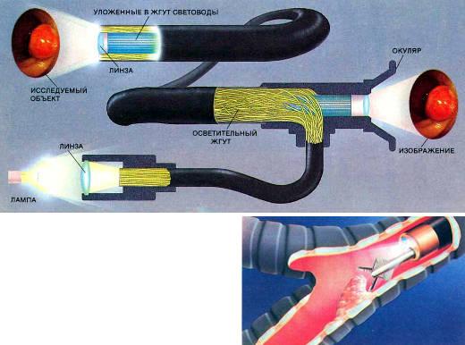 Фиброскоп (вверху) может передать изображение желудка и многих других органов. Линза фокусирует свет от лампы на вход жгута из волоконных световодов. Прошедший по световодам свет освещает полип в желудке. Отраженный от полипа свет фокусируется линзой на торец жгута световодов. Каждый световод в жгуте передает часть полного изображения. Когда свет выходит из наружного конца жгута, изображение полипа восстанавливается и его можно увидеть в окуляр. Фотографии полипов (вставленные на верхнем рисунке) получены с помощью фиброскопа в клинике Мэйо. Фиброскопы часто входят в более сложные приборы, называемые эндоскопами (справа), которые также имеют каналы для введения других приспособлений