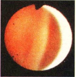 Правый желудочек сердца человека сфотографирован через сверхтонкий фиброскоп, введенный в плечевую артерию. Фиброскоп, диаметр которого меньше одного миллиметра, разработан в фирме Оlуmрus Corporation в Токио