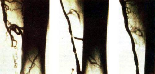 Рентгеновские снимки бедренных артерий демонстрируют достижения лазерной балонно-катетерной ангиопластики. На снимке слева артерия полностью заблокирована. После воздействия лазерного излучения от исходной закупорки осталось только 30% (в центре). Для расширения канала кровотока в артерию вводят катетер с надуваемым баллончиком, после чего нормальный кровоток восстанавливается (справа)