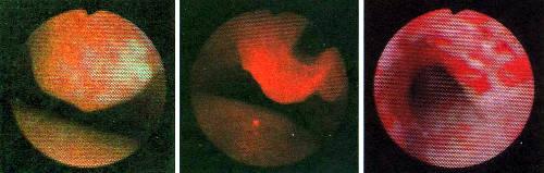 Фитодинамическая терапия позволяет удалить опухоль, закупорившую трахею (слева). Пациенту вводят краситель, который опухолью поглощается быстрее, чем здоровой тканью. Введенный в опухоль волоконный световод (в центре) подводит лазерное излучение, воздействующее на краситель. Через два дня, как видно на фотографии (справа), опухоль после облучения омертвилась, и теперь ее можно удалить