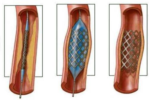 Ангиопластика: в артерию вводится катетер и продвигается по кровеносным сосудам до тех пор, пока не достигнет суженного участка. На конце катетера имеется баллончик, который надувается и сдавливает атеросклеротические наросты на стенках артерии, расширяя ее просвет